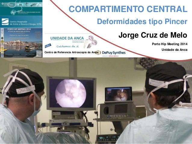 COMPARTIMENTO CENTRAL  Deformidades tipo Pincer  Jorge Cruz de Melo  Porto Hip Meeting 2014  Unidade da Anca  Centro de Re...