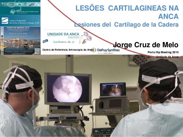 LESÕES CARTILAGINEAS NA ANCA Lesiones del Cartilago de la Cadera Jorge Cruz de Melo Porto Hip Meeting 2014 Unidade da Anca...