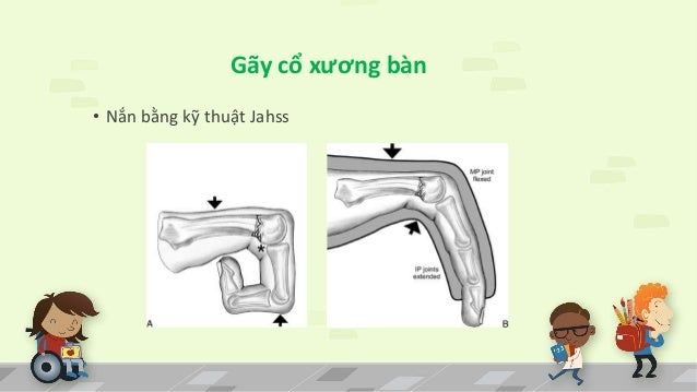 Gãy cổ xương bàn  • Nắn bằng kỹ thuật Jahss