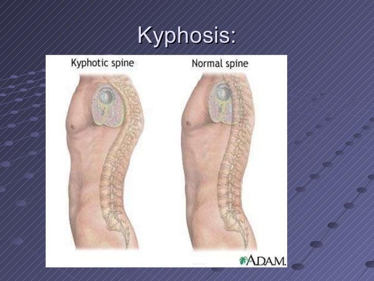 Kyphosis: