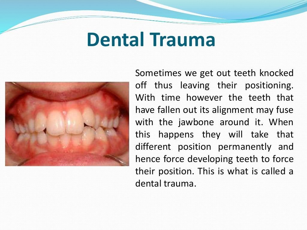 dental trauma essay