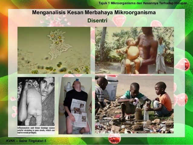 Tajuk 1 Mikroorganisma dan Kesannya Terhadap Hidupan               Menganalisis Kesan Merbahaya Mikroorganisma            ...