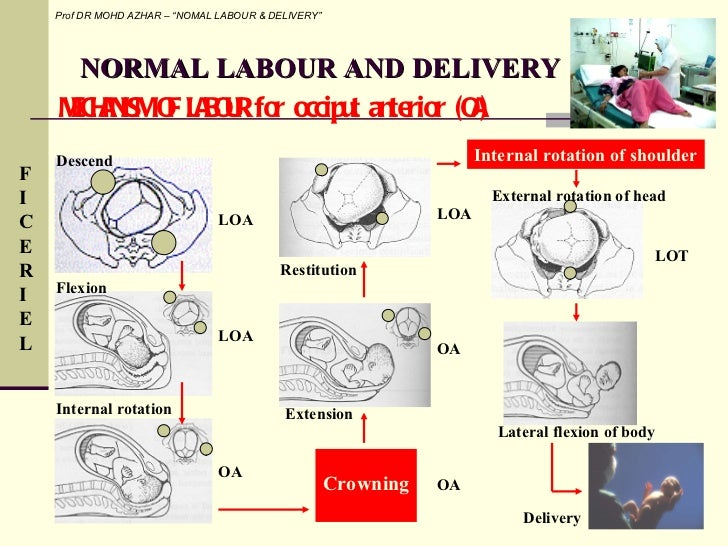 mechanism of labor and delivery Start studying labor and delivery quiz learn vocabulary, terms, and more with flashcards, games, and other study tools.