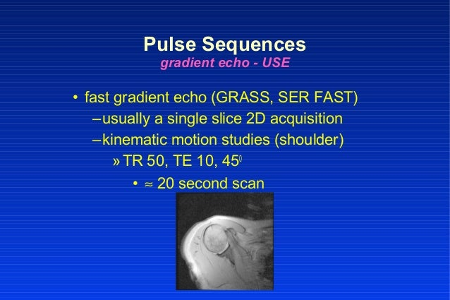 • fast gradient echo (GRASS, SER FAST) –usually a single slice 2D acquisition –kinematic motion studies (shoulder) »TR 50,...