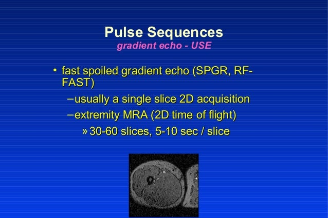 • fast spoiled gradient echo (SPGR, RF-fast spoiled gradient echo (SPGR, RF- FAST)FAST) –usually a single slice 2D acquisi...