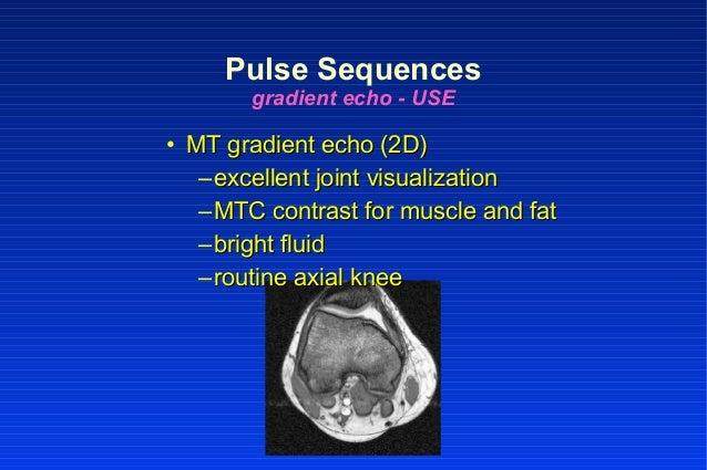 • MT gradient echo (2D)MT gradient echo (2D) –excellent joint visualizationexcellent joint visualization –MTC contrast for...