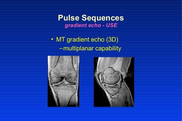 • MT gradient echo (3D) –multiplanar capability Pulse Sequences gradient echo - USE