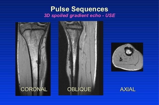 CORONALCORONAL OBLIQUEOBLIQUE AXIALAXIAL Pulse Sequences 3D spoiled gradient echo - USE
