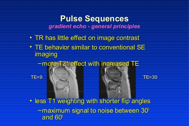 • TR has little effect on image contrastTR has little effect on image contrast • TE behavior similar to conventional SETE ...