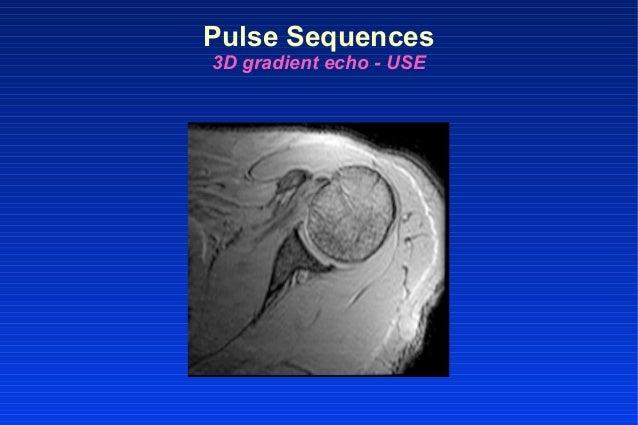 Pulse Sequences 3D gradient echo - USE