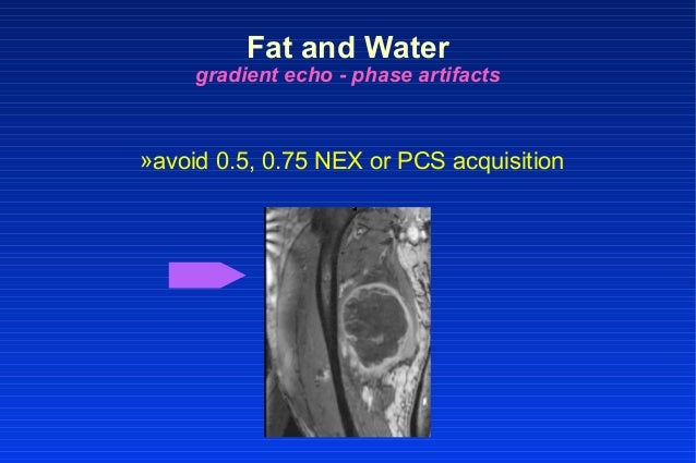 Fat and Water gradient echo - phase artifacts »avoid 0.5, 0.75 NEX or PCS acquisition