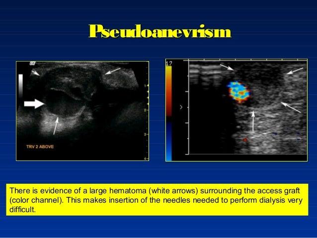Fistula Arterio Venoasa La Pacientii Dializati