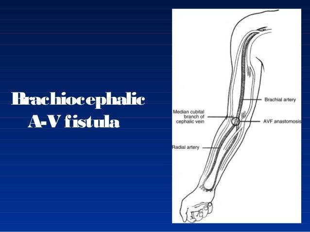 Av Fistula Radiocephalic Fistula arterio-venoas...