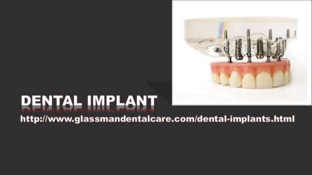5. dental implants (d)