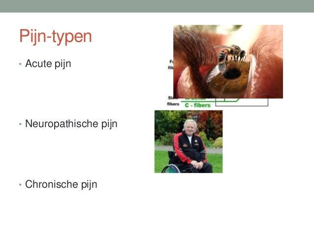 Pijn-typen • Acute pijn • Neuropathische pijn • Chronische pijn