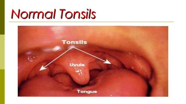 Related Keywords & Suggestions for normal tonsils