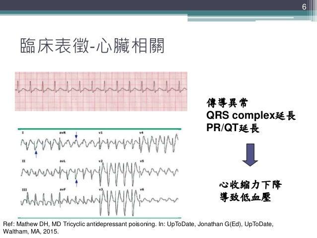 6 6 臨床表徵-心臟相關 竇性心動過速 傳導異常 QRS complex延長 PR/QT延長 心收縮力下降 導致低血壓 Ref: Mathew DH, MD Tricyclic antidepressant poisoning. In: Up...