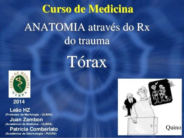 Curso de Medicina ANATOMIA através do Rx do trauma Tórax 2014 Leão HZ (Professor de Morfologia – ULBRA) Juan Zambon (Acadê...