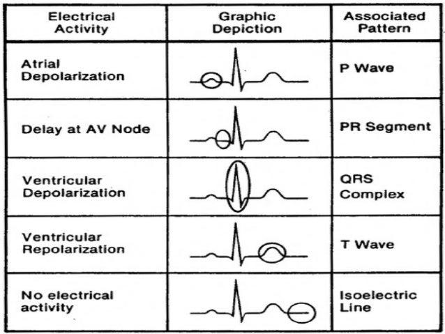 ekg about it all Ekg interpretation objectives describe the basic approach to interpretation of ecg strips do all p-waves look similar.