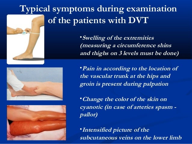 Pulmonary Embolism May Be The First Symptom Of DVT 11 Typical Symptoms