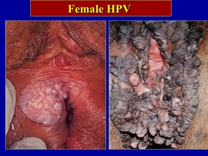 Sexual Diseases In Women