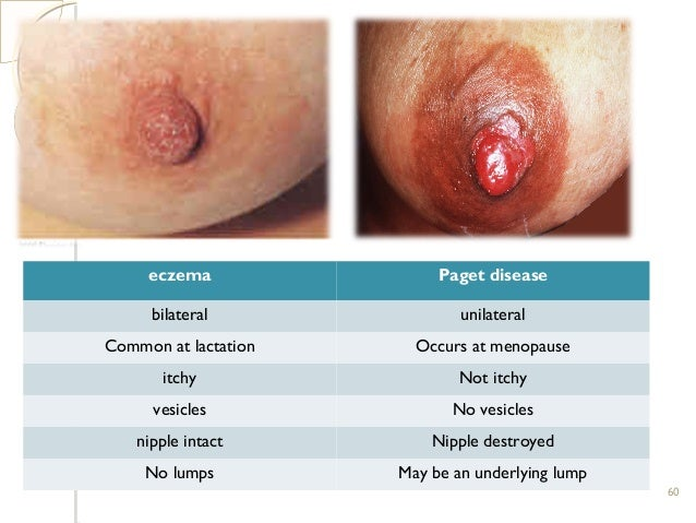 Nipple Eczema Dermatitis - The Royal Women's Hospital