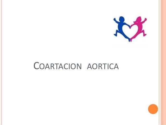 COARTACION AORTICA