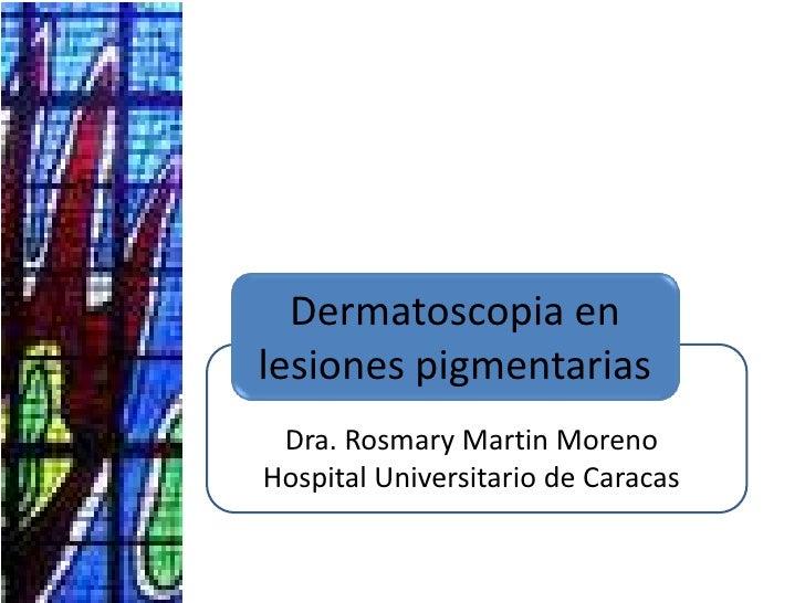 Dermatoscopia en lesiones pigmentarias<br />Dra. Rosmary Martin Moreno<br />Hospital Universitario de Caracas<br />