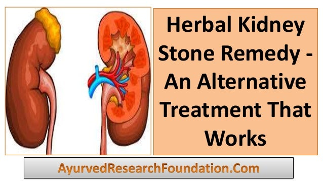 Herbal Kidney Stone Remedy - An Alternative Treatment That Works