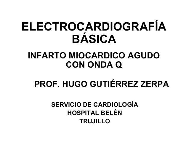 ELECTROCARDIOGRAFÍA BÁSICA INFARTO MIOCARDICO AGUDO CON ONDA Q PROF. HUGO GUTIÉRREZ ZERPA SERVICIO DE CARDIOLOGÍA HOSPITAL...