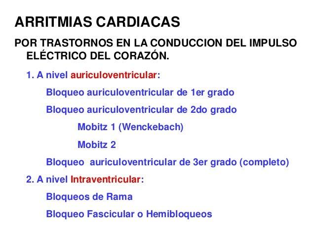 ARRITMIAS CARDIACAS POR TRASTORNOS EN LA CONDUCCION DEL IMPULSO ELÉCTRICO DEL CORAZÓN. 1. A nivel auriculoventricular: Blo...