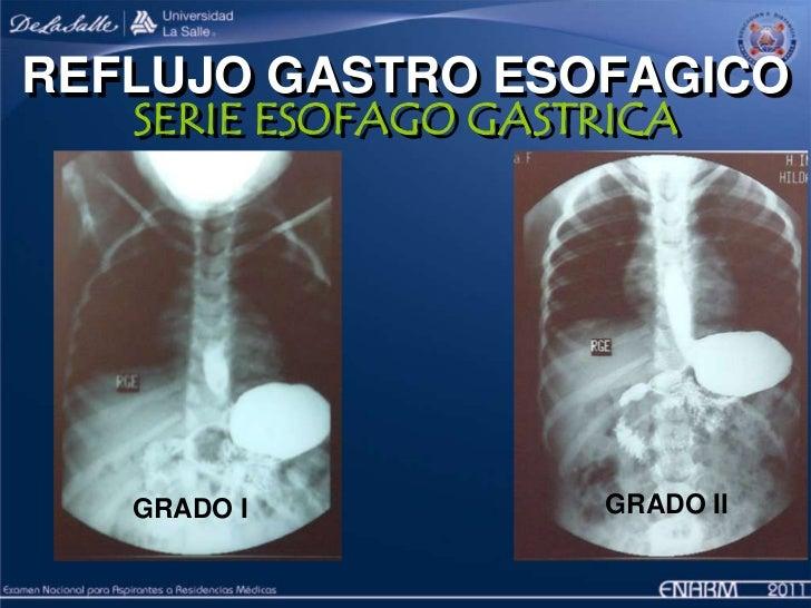 5. Reflujo gastroesofágico en la edad pediátrica, su diagnóstico y s…