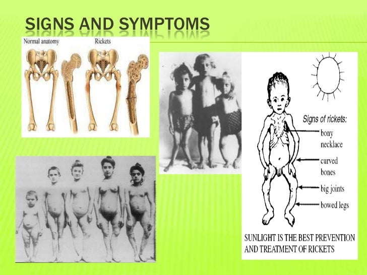 rickets symptoms and diagnosis Learn more about xlhi am short and bow legged: two common symptoms of a   genetic disorder called vitamin d resistant rickets, another name for xlh.