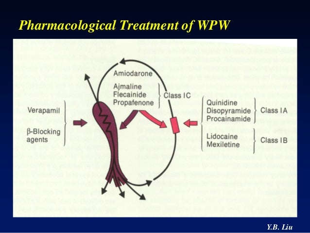 Wolff - Parkinson - White Syndrome