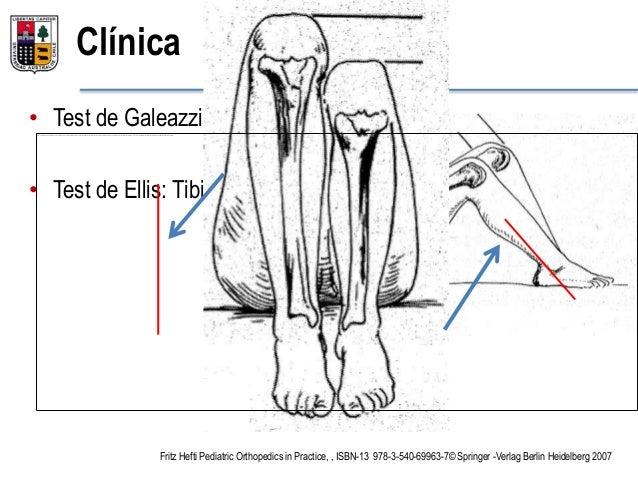 Alteraciones ejes anatomicos