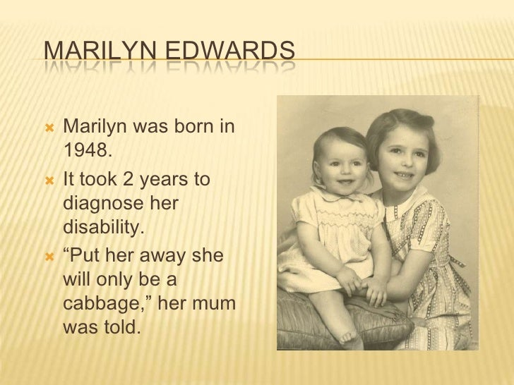 """Marilyn Edwards<br />Marilyn was born in 1948. <br />It took 2 years to diagnose her disability.<br />""""Put her away she wi..."""