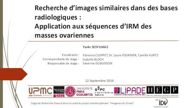 Recherche d'images similaires dans des bases radiologiques : Application aux séquences d'IRM des masses ovariennes Stage d...