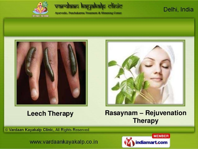 leech therapy for weight loss
