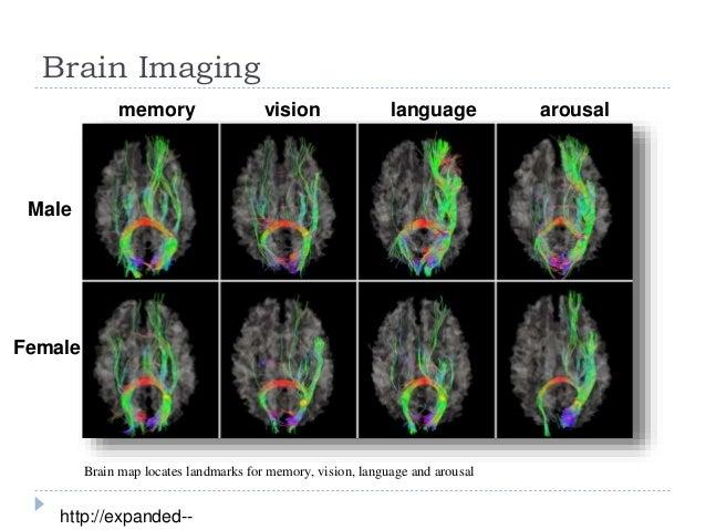 Sexually dimorphic brain areas