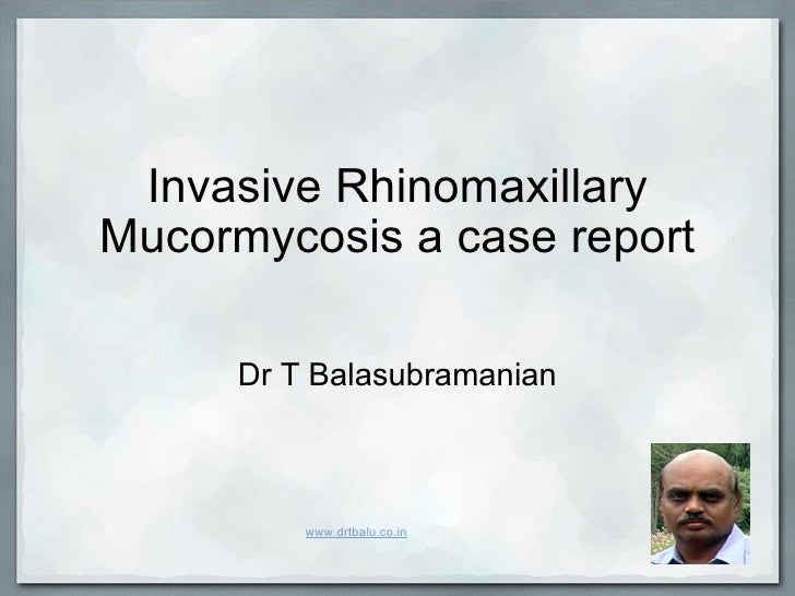 Invasive Rhinomaxillary Mucormycosis a case report Dr T Balasubramanian www.drtbalu.co.in