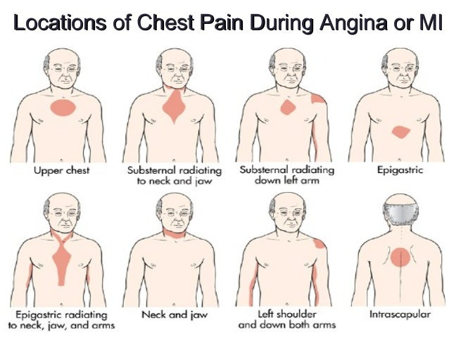 Cardiac Disruptions Alterations In Oxygenationrhslideshare: Heart Pain Locations At Gmaili.net