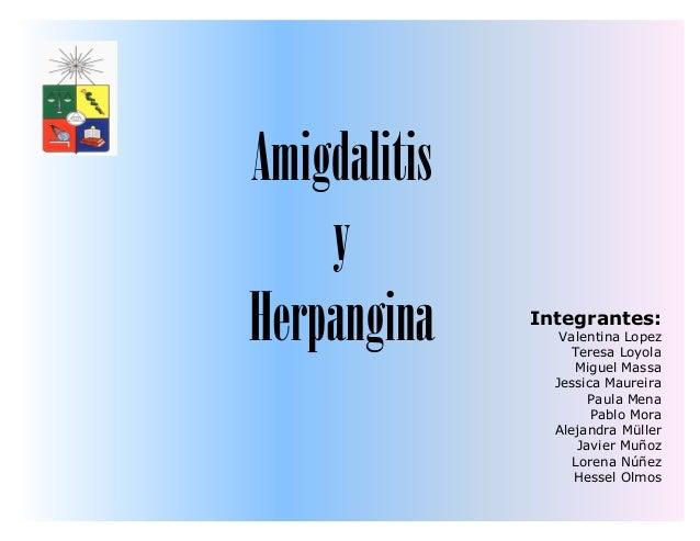 AmigdalitisyHerpangina Integrantes:Valentina LopezTeresa LoyolaMiguel MassaJessica MaureiraPaula MenaPablo MoraAlejandra M...