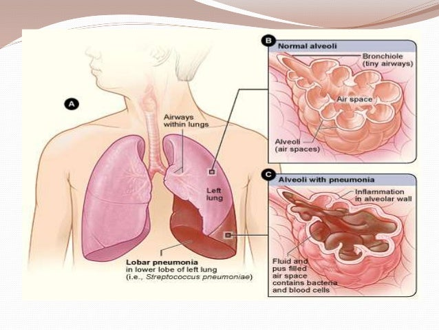epiglottitis symptoms