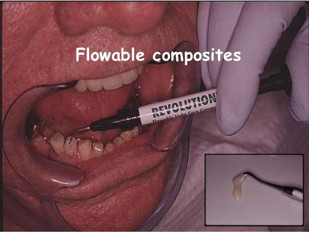 Flowable composites
