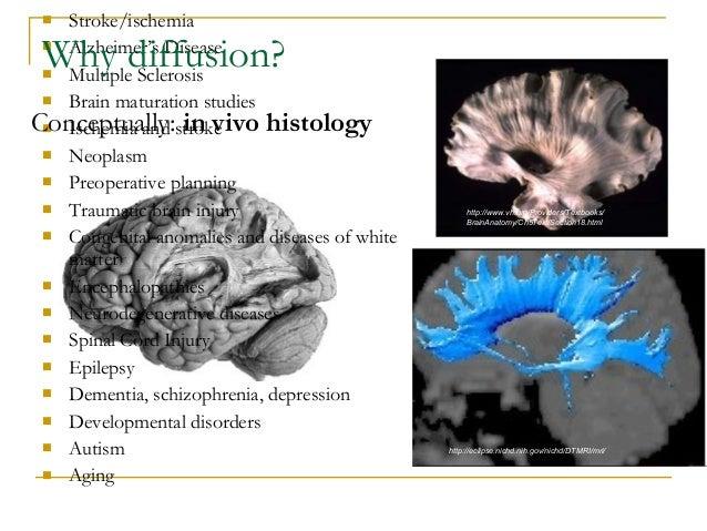 DTI lecture 100710 Slide 2