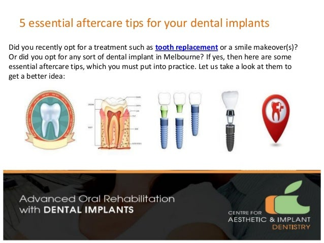5 essential aftercare tips for your dental implants Did you recently opt for a treatment such as tooth replacement or a sm...