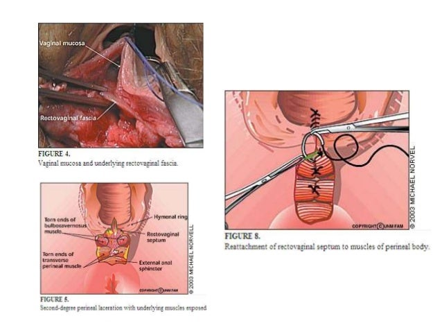 3rd degree episiotomy infection