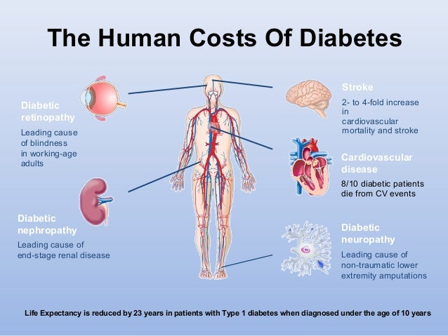 diabetes and stroke relationship