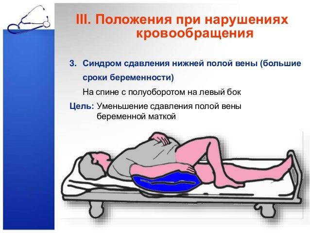 тромбоз нижней полой вены лечение