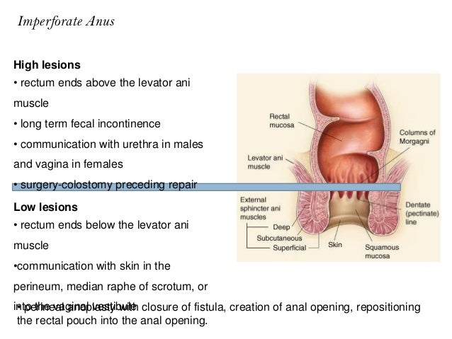 Imperforate anal membrane
